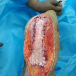 Tendon-Repair-inside
